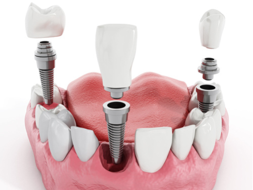 Multiple teeth dental implant - Dental at MediaCityUK