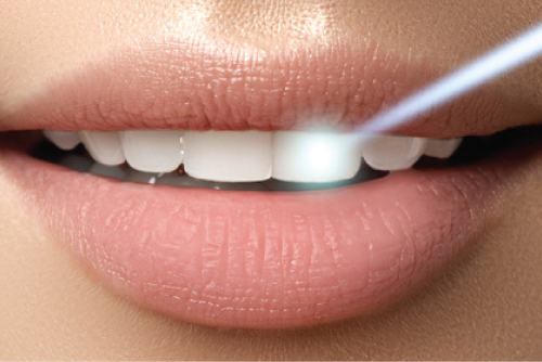 Zoom whitening - Dental at MediaCityUK