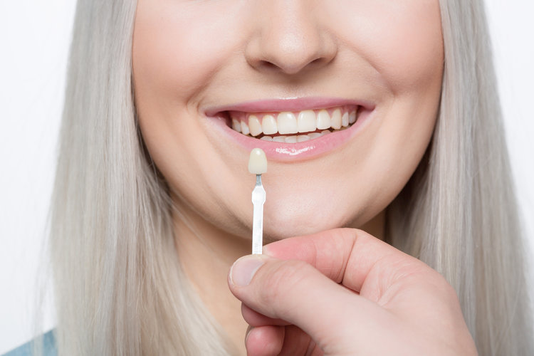 Veneers Manchester and Salford - Dental at MediaCityUK