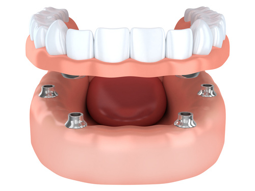 Denture support dental implant - Dental at MediaCityUK