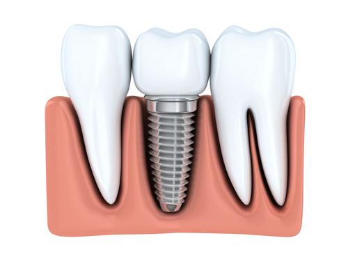single tooth dental implant - Dental at MediaCityUK